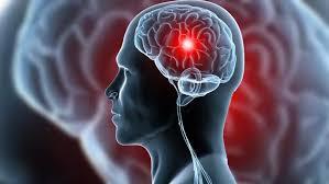 Dia Mundial do Cérebro levanta importância sobre estar atento ao AVC