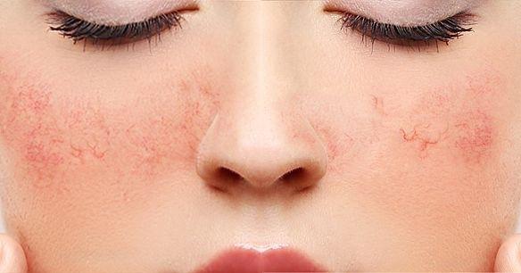 Pequenos notáveis: vasinhos no rosto têm tratamento
